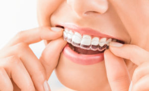 The Dangers of Using At-Home Dental Aligners