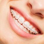crooked-teeth-braces